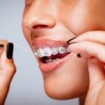 Eine Frau reinigt ihre Metallbrackets mit Zahnseide