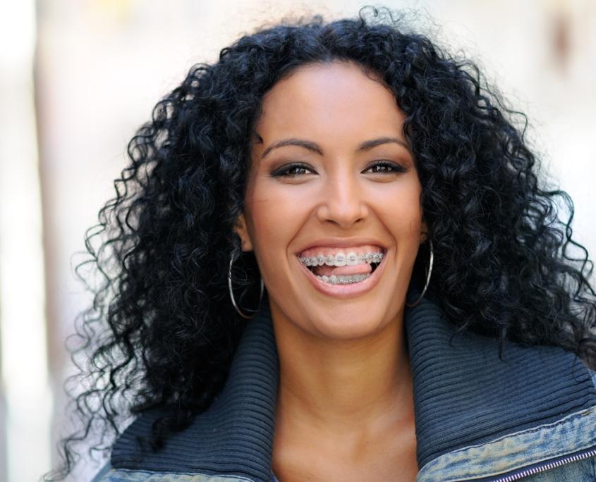 Erwachsene Frau grinst mit Ihrer festen Zahnspange