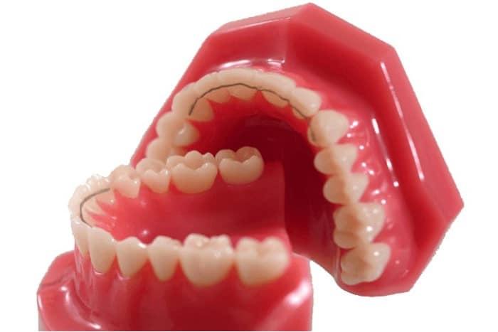 nach der erfolgreichen Zahnstellungskorrektur wird das Behandlungsergebnis mit Hilfe eines Retainers und einer Stabilisierungsschiene stabilisiert