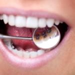 innenliegende feste Zahnspange einer jungen Frau wird über einen Mundspiegel gezeigt