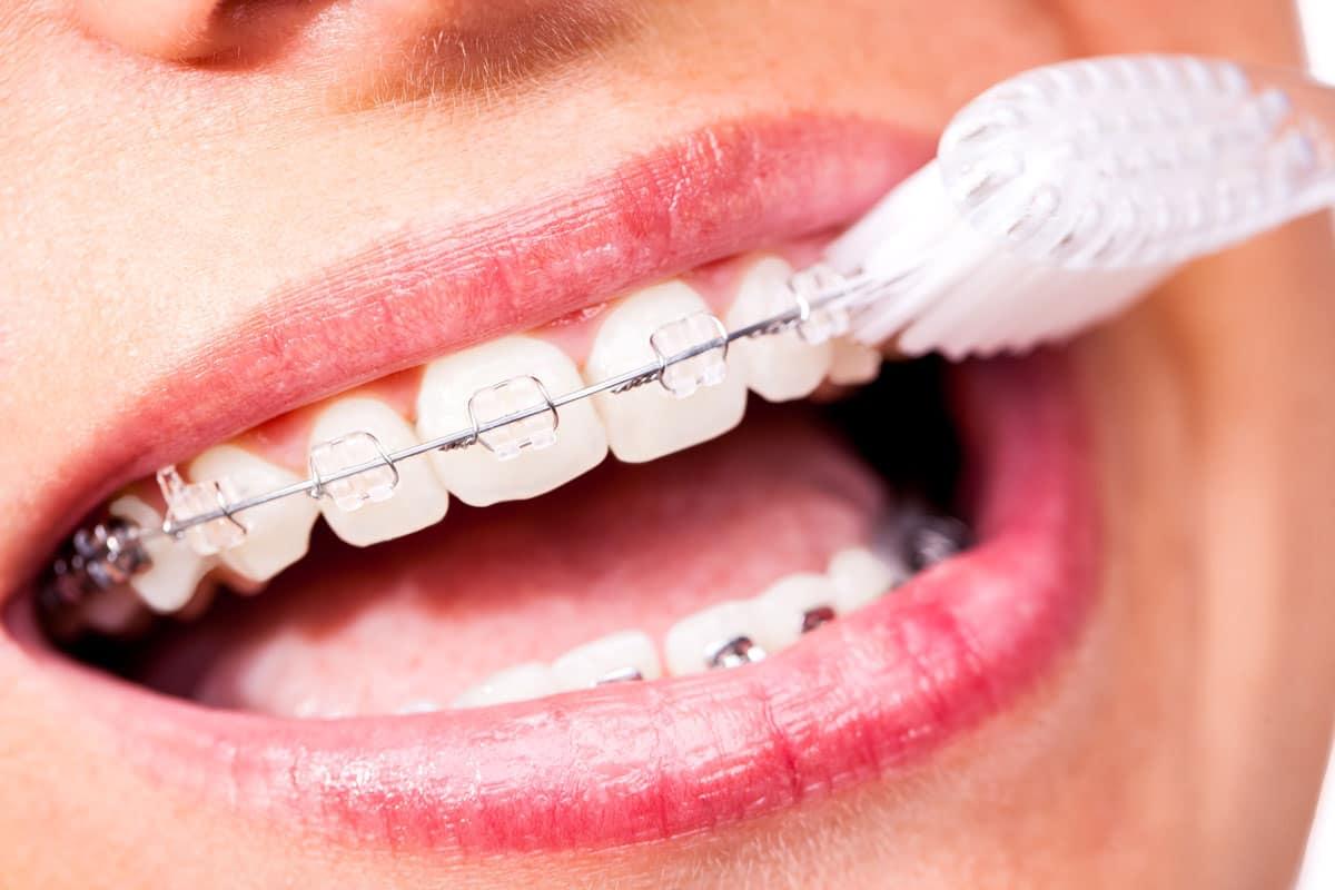 feste Zahnspange wird mit Zahnbürste gereinigt